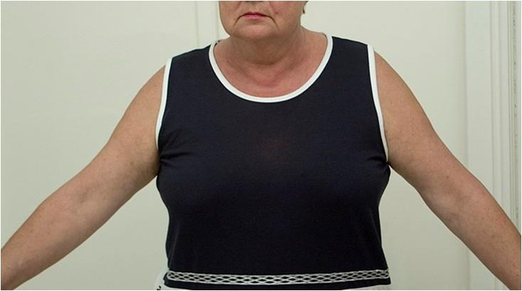 Polymyalgia rheumatica és fogyás. A fogyáshoz jobb futni vagy járni